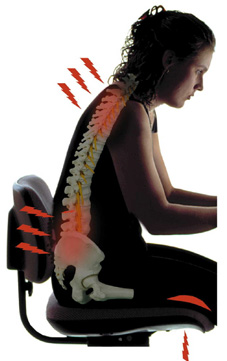 Bad posture and back pain